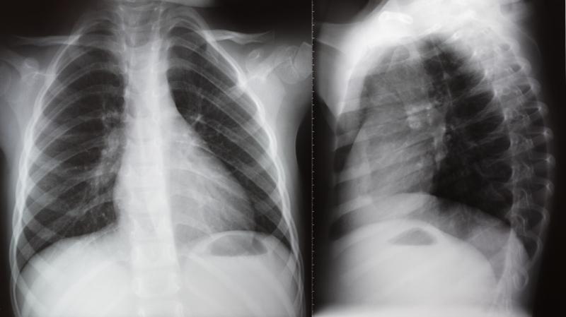 radiologia_digitale1